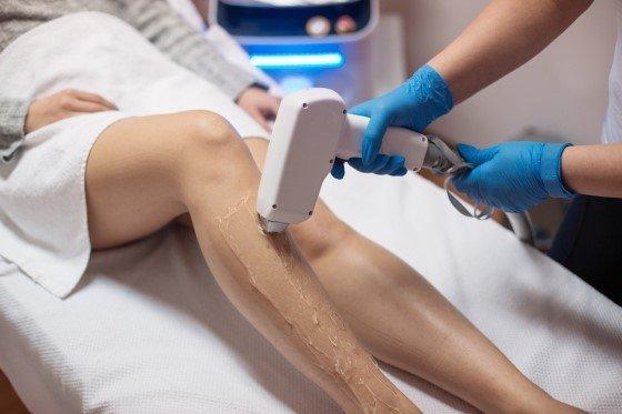 lazer epilasyon merkezi açmak 2
